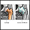image for Osteoarthritis vs. rheumatoid arthritis