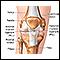 image for Anterior cruciate ligament repair - Series