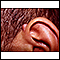 image for Keloid above the ear